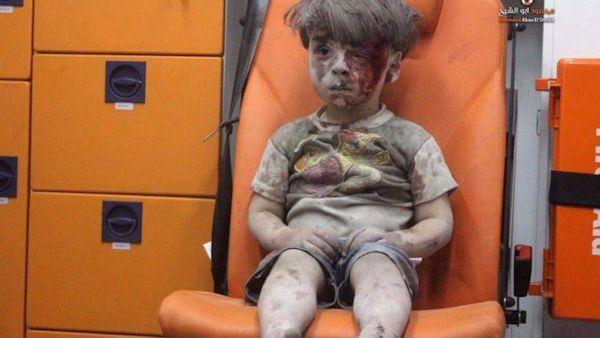 6letni alex pomoc dziecko syria