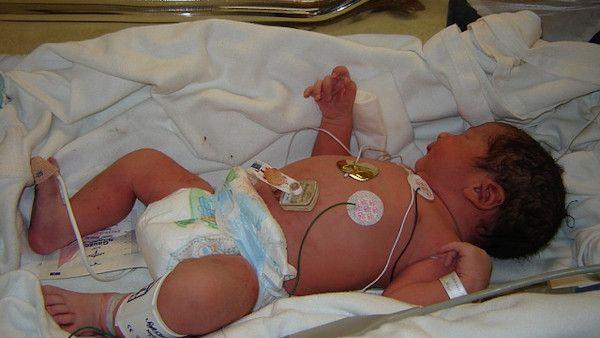 Pielegniarka przywiazywala niemowle
